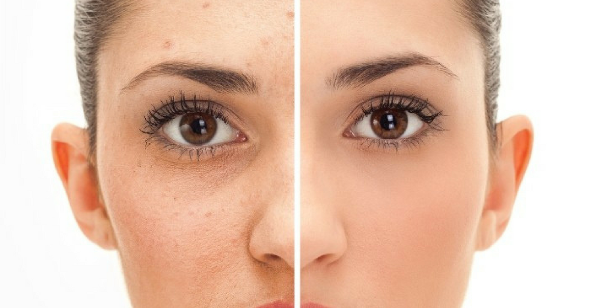 Fotona: Traitement de l'acné et des cicatrices d'acné