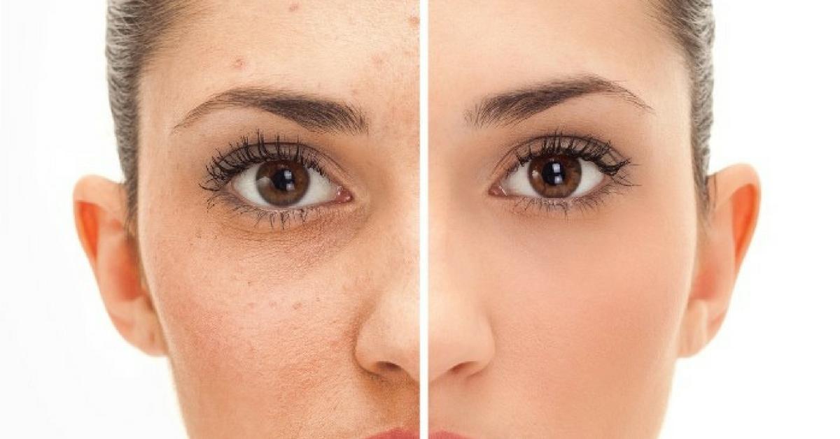 Fotona: Fini l'acné et ses cicatrices!